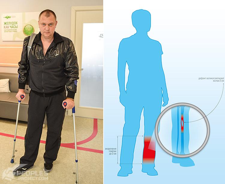 Oleksand-injury-PDF