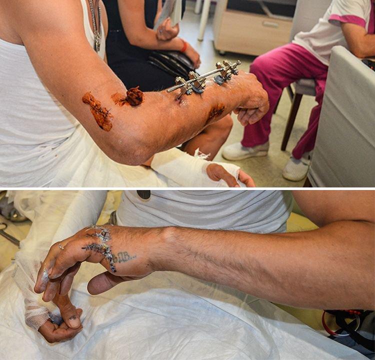 Evgen-injuries-photo