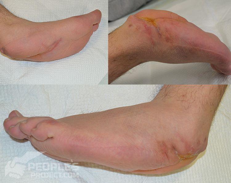 Inside-wounded-heel-2